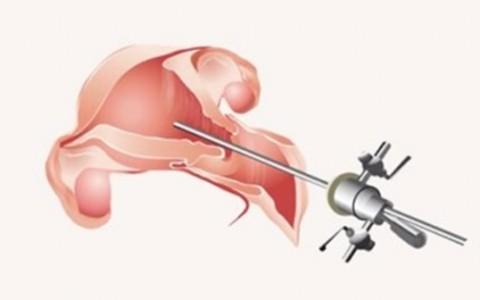 img-hysteroscopy-1